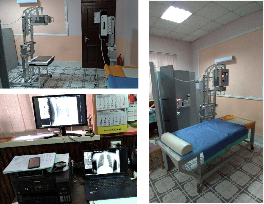 Легкий цифровий рентгенодіагностичний комплекс КРДЦ-03-АЛЬФА